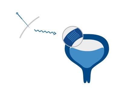 mechanizm-dzialania-blona-sluzowa-pecherza-moczowego